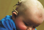 Infant with cochlear implant.
