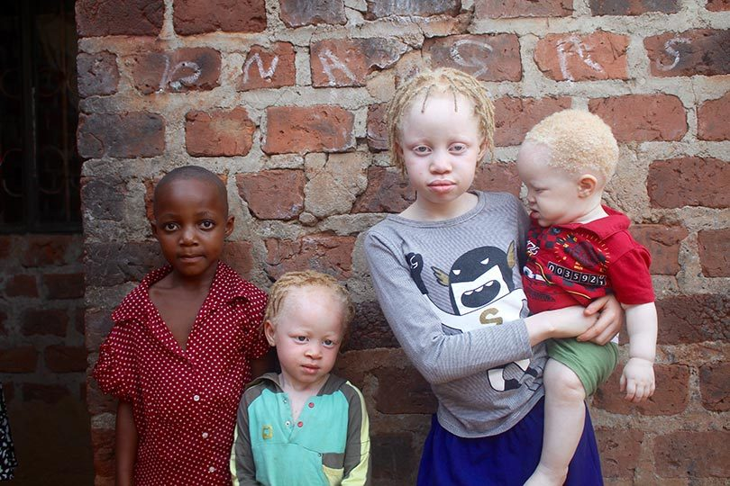 From left, Tiffany, 6, with her albino siblings Melira, 4, Liz, 9, and Solomon, 10 months, at their home in Kampala, Uganda. Photo: Amy Fallon