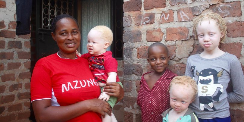 Scovia Nsiimenta holding one of her albino children, 10-month-old Solomon, with her other children, from left, Tiffany, 6, Melira, 4, and Liz, 9, at their home in Kampala, Uganda. Photo: Amy Fallon